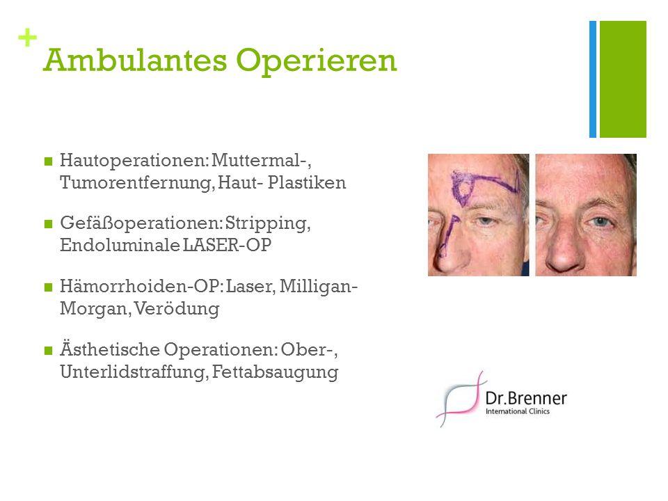 + Ambulantes Operieren Hautoperationen: Muttermal-, Tumorentfernung, Haut- Plastiken Gefäßoperationen: Stripping, Endoluminale LASER-OP Hämorrhoiden-OP: Laser, Milligan- Morgan, Verödung Ästhetische Operationen: Ober-, Unterlidstraffung, Fettabsaugung