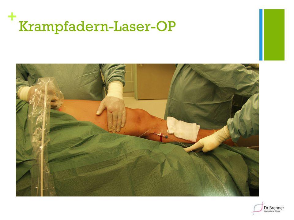 + Krampfadern-Laser-OP