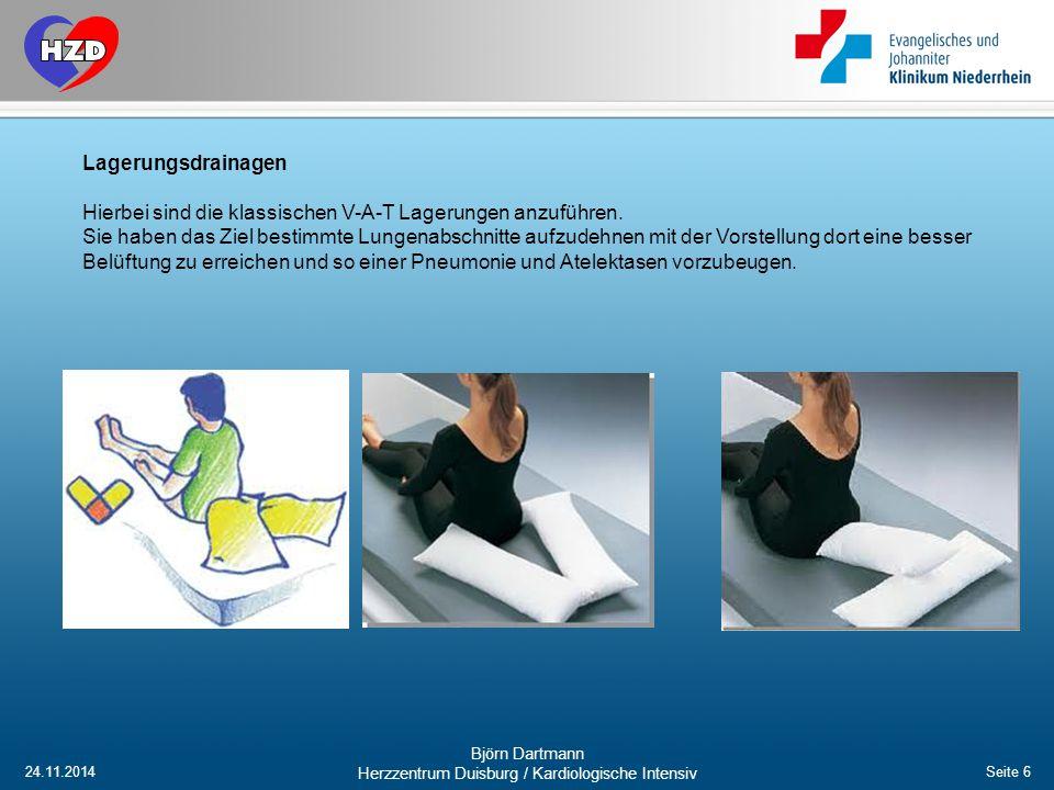 24.11.2014 Björn Dartmann Herzzentrum Duisburg / Kardiologische Intensiv Seite 6 Lagerungsdrainagen Hierbei sind die klassischen V-A-T Lagerungen anzu