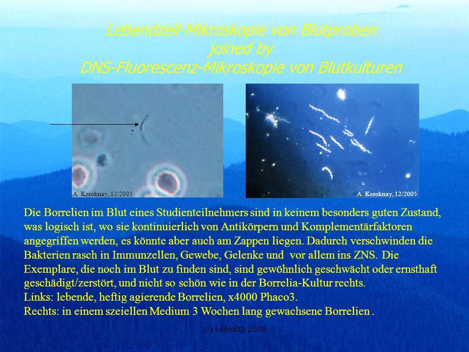 (c) i-Health 2006 Lebendzell-Mikroskopie von Blutproben joined by DNS-Fluorescenz-Mikroskopie von Blutkulturen Die Borrelien im Blut eines Studienteil