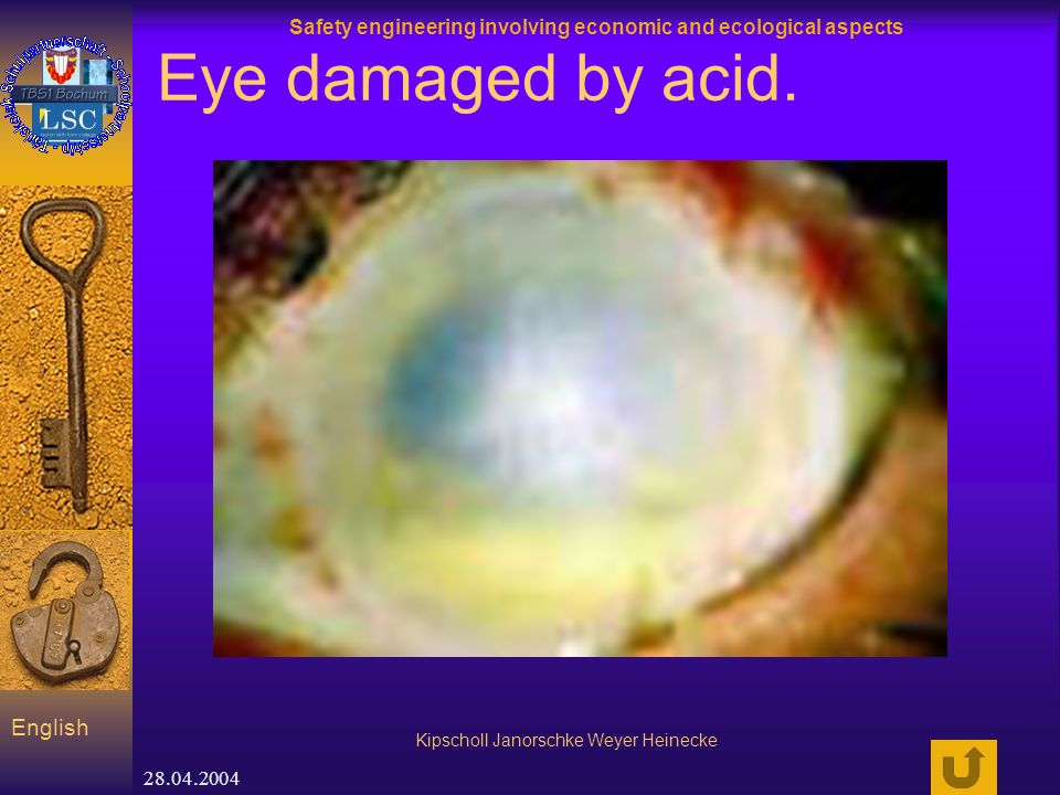 Safety engineering involving economic and ecological aspects Kipscholl Janorschke Weyer Heinecke English 28.04.2004 Eye damaged by acid.