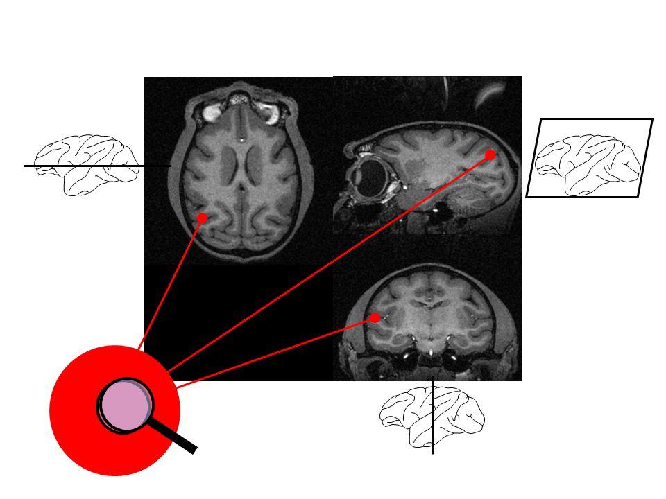 Bilder des Gehirns verstehen - ppt herunterladen