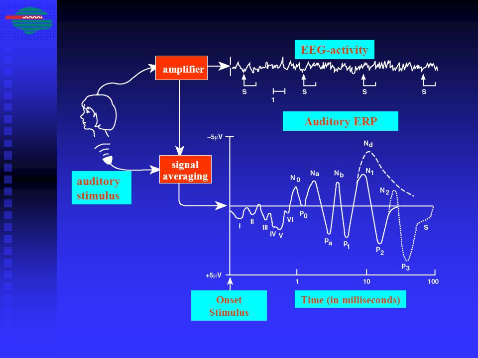 EEG-activity Auditory ERP auditory stimulus Onset Stimulus Time (in milliseconds) amplifier signal averaging