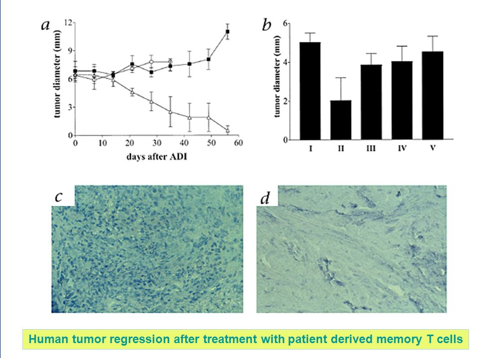 Human tumor regression after treatment with patient derived memory T cells