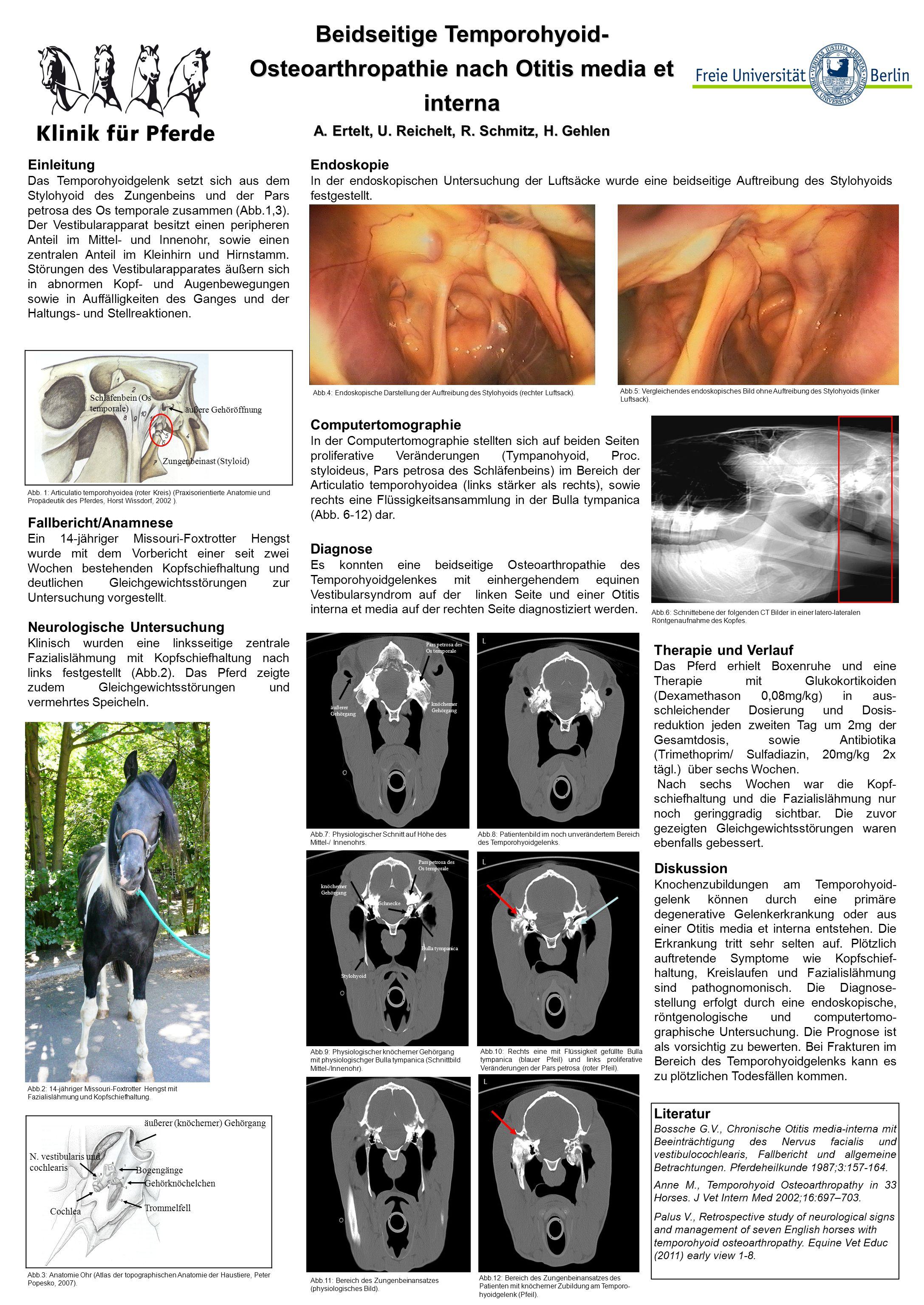 Beidseitige Temporohyoid- Osteoarthropathie nach Otitis media et ...