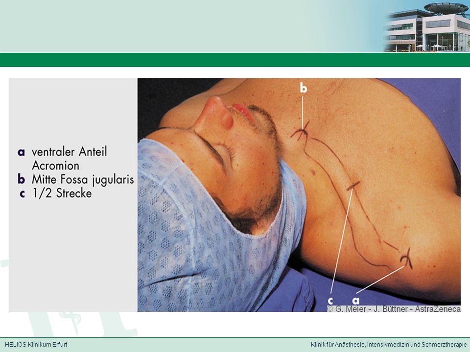Anästhesie des Plexus brachialis LSIP - ppt video online herunterladen